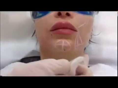 Frotter les yeux après la correction laser