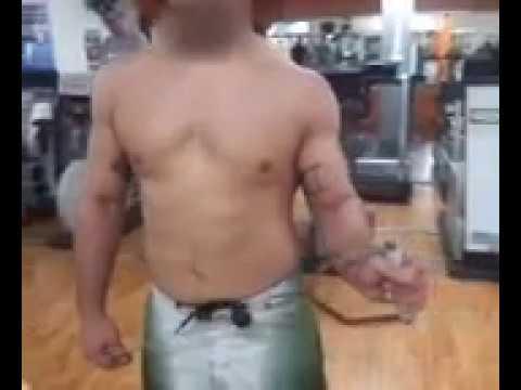 Il mal di schiena dopo un trampolino