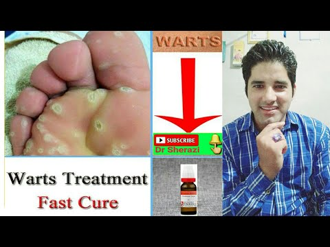 How to remove Warts on Your face by Homeopathic Medicine