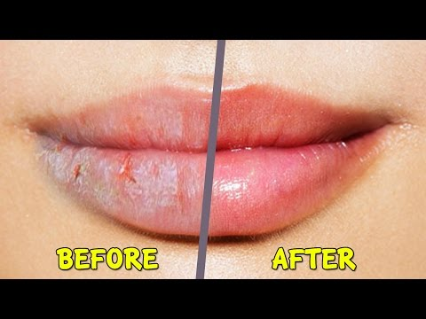 Video Best home remedies for Dry Cracked Chapped Lips in winter | 100% Work