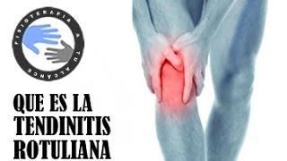 Tendinitis rotuliana, que es y porque se produce