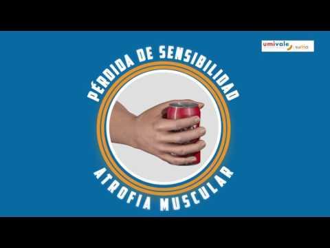 causas y efectos de la esclerosis multiple