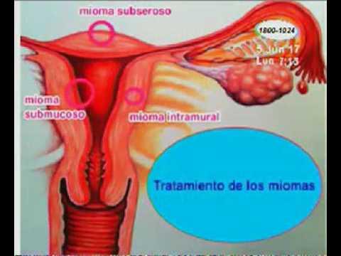 Diarree 6 weken zwanger