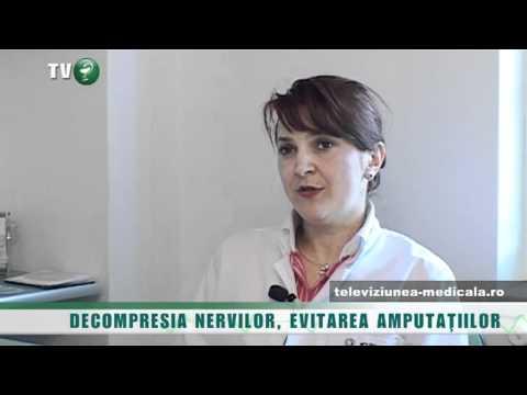 Tratamentul osteocondrozei ce unguente