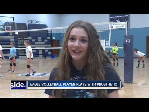 Local volleyball star plays with a prosthetic leg