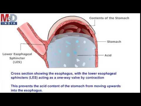 แผลในหลอดเลือดดำที่ขา
