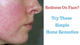 How To Remove Redness On Face Naturally At Home