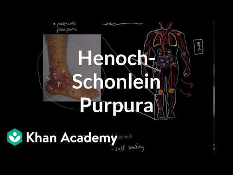 Henoch-Schonlein purpura (video) | Khan Academy