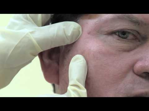 Papiloma humano cancer de cuello