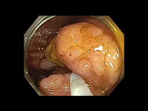 Medical videos surgery and procedures videos medtube colonoscopy cecal tumor lst mixed piecemeal emr ccuart Gallery