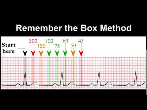 ECG Rhythm Recognition Practice - Test 1 - YouTube