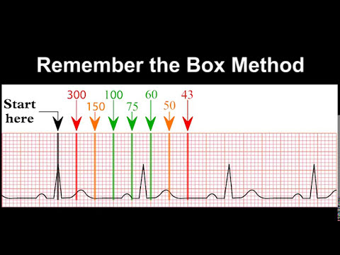 mp4 Med Student Ecg Quiz, download Med Student Ecg Quiz video klip Med Student Ecg Quiz