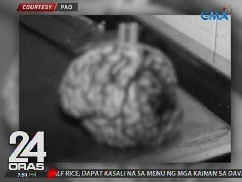 Ikaw ay dumating sa labas ng isang bungkos ng mga parasito kung uminom ka