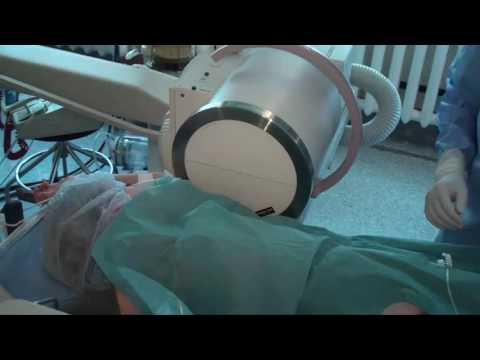 Ласек и лазерная коррекция зрения