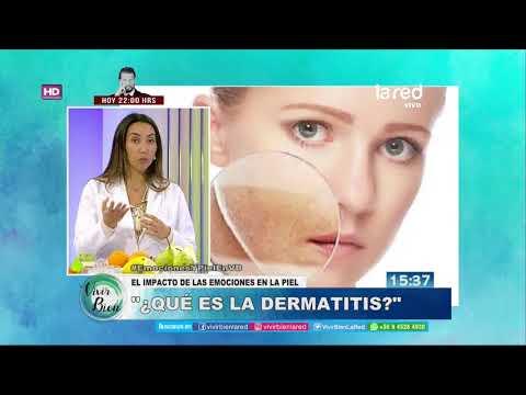 La psoriasis puede ser las manchas blancas