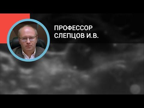 Профессор Слепцов И.В.: Узлы щитовидной железы: диагностика и лечение.