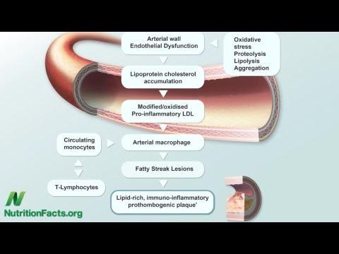 A szájüregi daganatok és tünetei, Argentin szájüregi rák