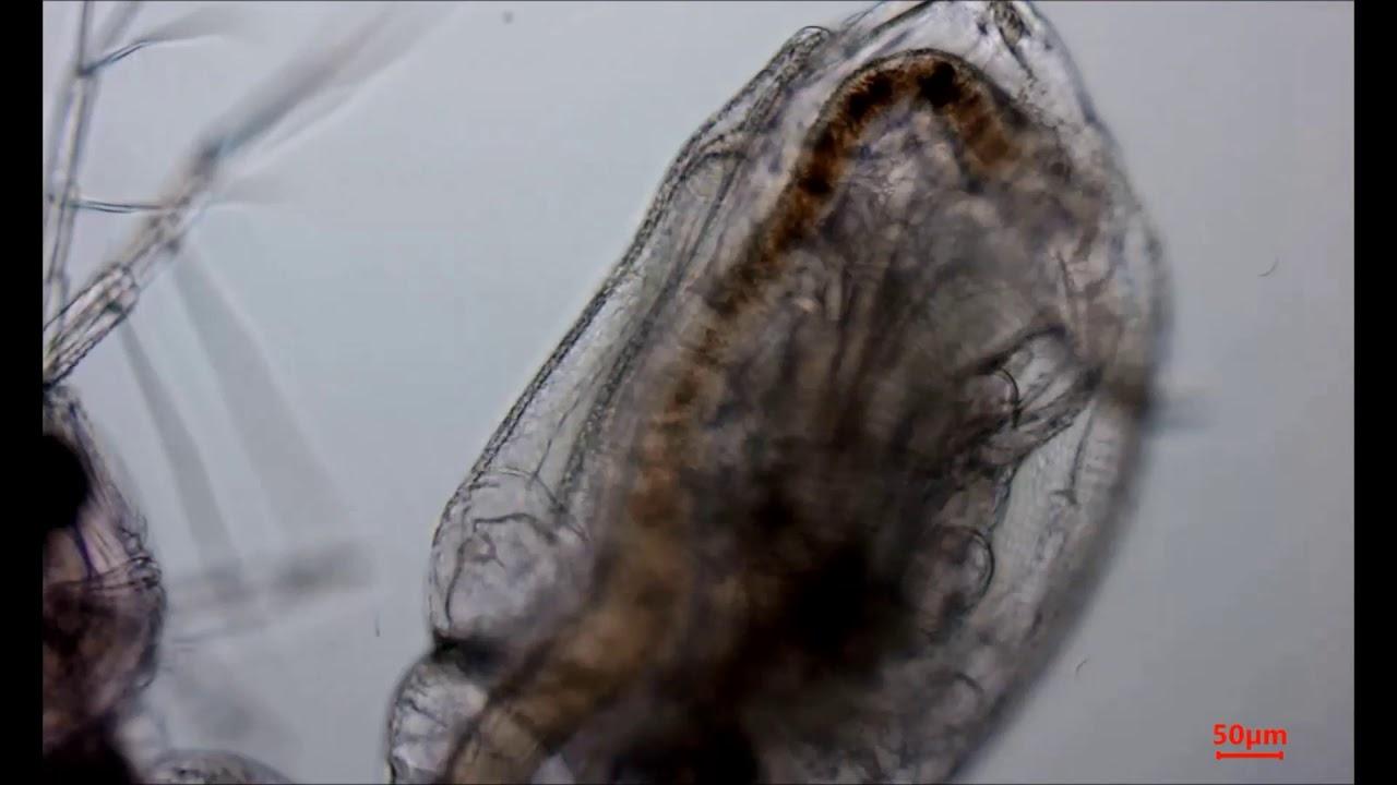 Видео о товаре Камера для микроскопа ToupCam U3CMOS05100KPA