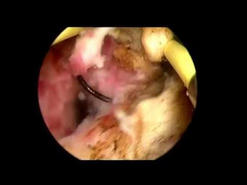 Transurethral Resection of Prostate with Abscess