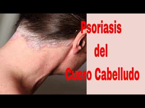El tratamiento de la psoriasis 2016