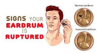 8 Signs Your Eardrum is Ruptured