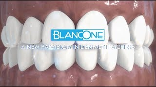 BlancOne: the new paradigm in teeth whitening (voiceover)