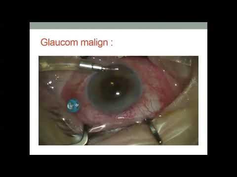 Cum să vă reduceți temporar vederea