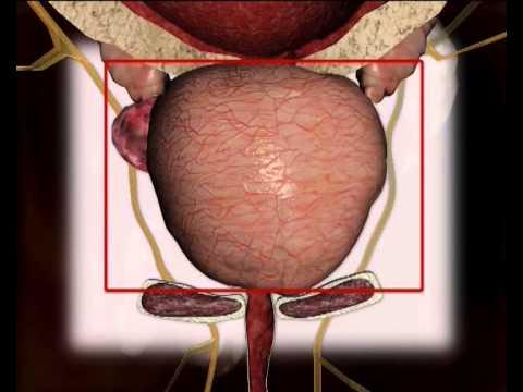 Uretritida a prostatitida u mužů