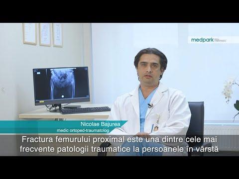 Medicamente pentru exacerbarea osteochondrozei