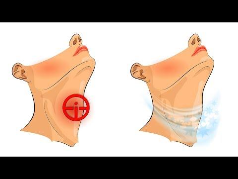 Verformen von Arthrosen talo-navicular Gelenkgrad 2