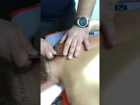Artroza gradului 2 al tratamentului articulației umărului