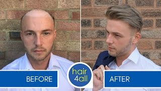 How To Apply (Attach) A Non-Surgical Hair Replacement System For Men With The Harris Brothers