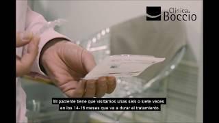 1.000 casos con invisalign