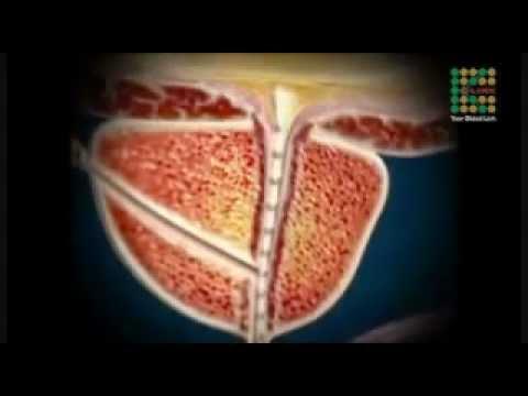 La stimolazione della prostata con le loro mani allorgasmo