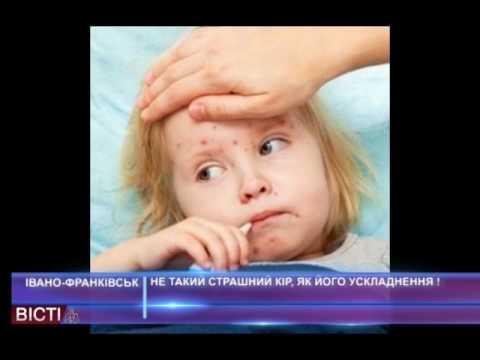 Гепатит в признаки у ребенка