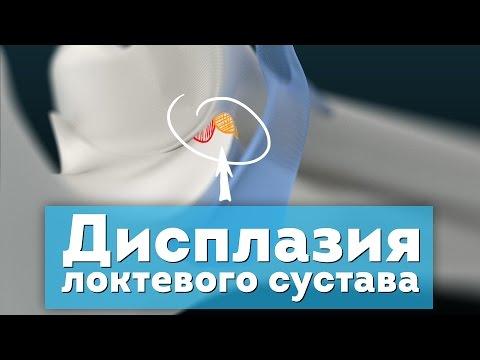Остеохондроз шейного отдела позвоночника с симпатическим синдром