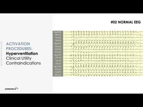 Hipertenzija i cerebrovaskularni inzult