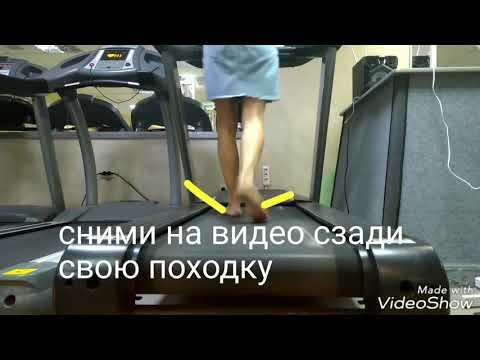 Koślawego leczenie deformacja Czeboksary