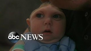 'Miracle Baby' Born Without Most of His Brain Defying Odds