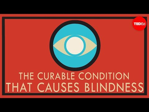 Video A curable condition that causes blindness - Andrew Bastawrous