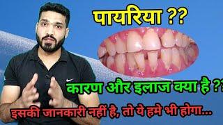 पायरिया क्या है ?? इसके कारण, लक्षण और इलाज । pyriya , periodontitis causes, symptoms & treatment