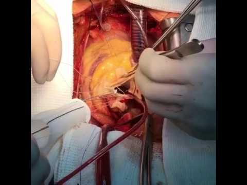 Do que no tratamento da hipertensão crónica