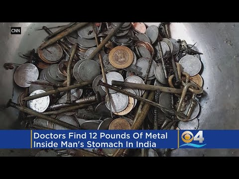 Surgeons Remove 263 Coins, 100 Nails From Man's Stomach