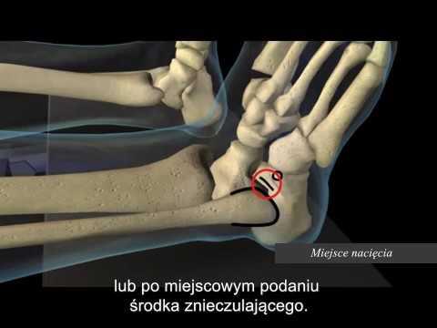 Pieszo blisko duży palec kość rośnie i boli