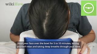 How to Naturally Remove Blackheads (Steam and Towel Method)