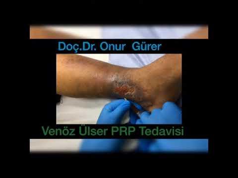 Venöz ülser PRP tedavisi-Doç.Dr. Onur Gürer