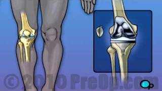 Knee Replacement SurgeryVideo In India