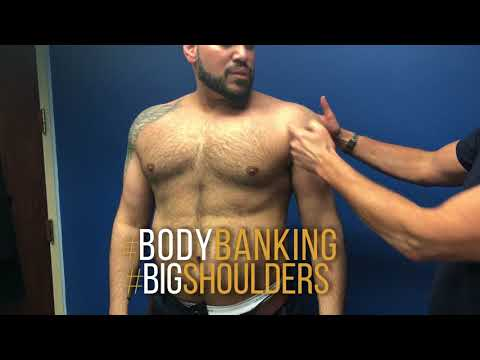 Male Plastic Surgery Body Banking By Dr. Douglas S. Steinbrech 1 Year Post Operative