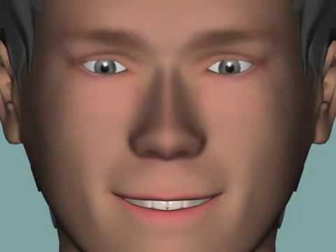 Глазное дно при близорукости