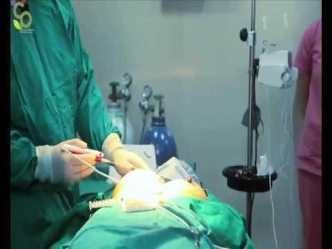 Ang breast surgery sa Almaty